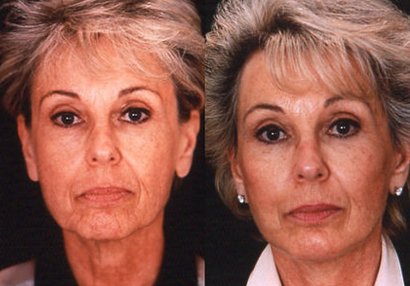 Face & Neck Lift - View 1