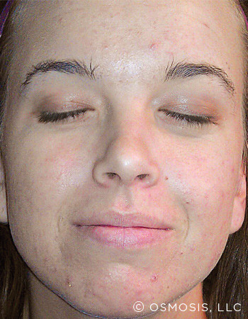 Acne_5_After.jpg