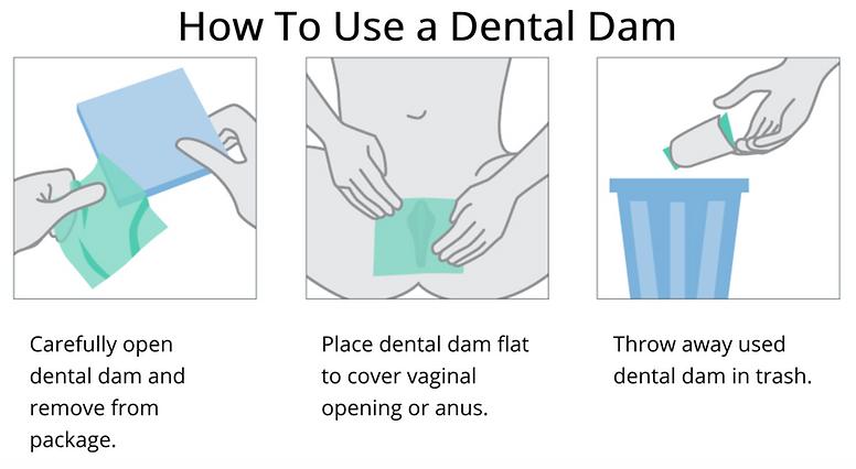 Dental_dam_usage.png