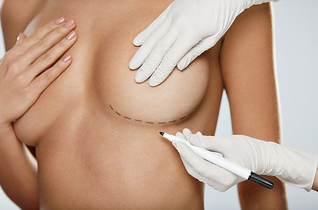 1- Breast-Augmentation-Procedure.jpg