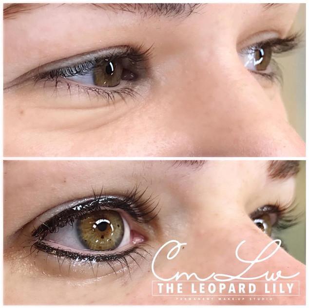Permanent Eyeliner Procedure 9.jpg