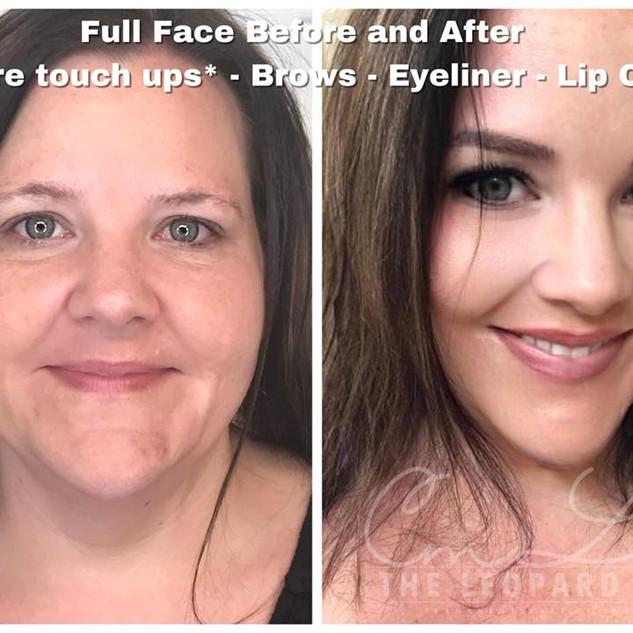 Permanent Eyeliner Procedure 5.jpg
