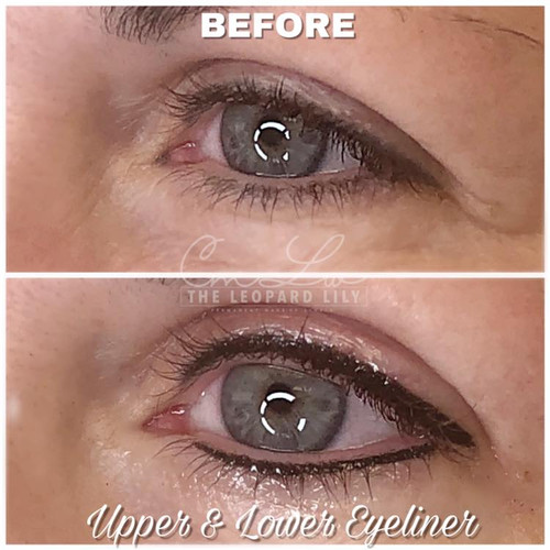 Permanent Eyeliner Procedure 2.jpg