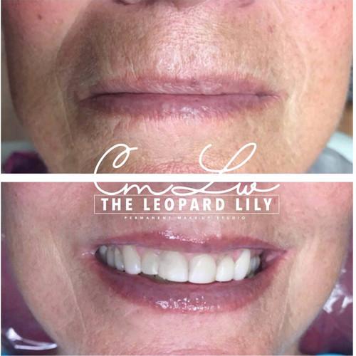 Lip Color Permanent Procedure 13.jpg