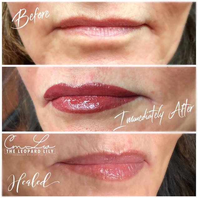 Lip Color Permanent Procedure 9.jpg