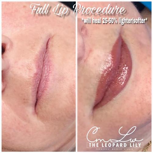 Lip Color Permanent Procedure 2.jpg