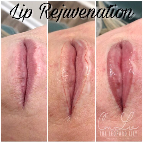 Lip Color Permanent Procedure 3.jpg