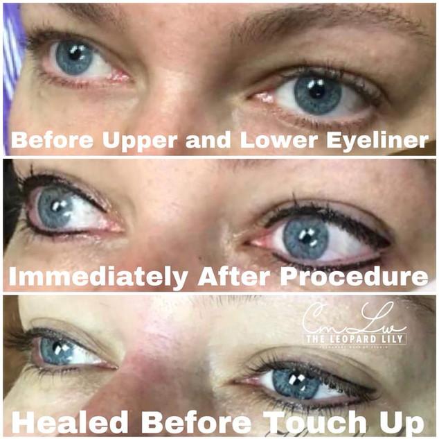 Permanent Eyeliner Procedure 15.jpg
