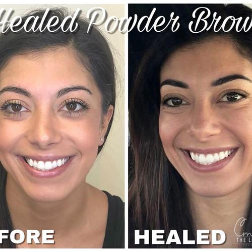 Powder Brow Procedure 23 healed.jpg