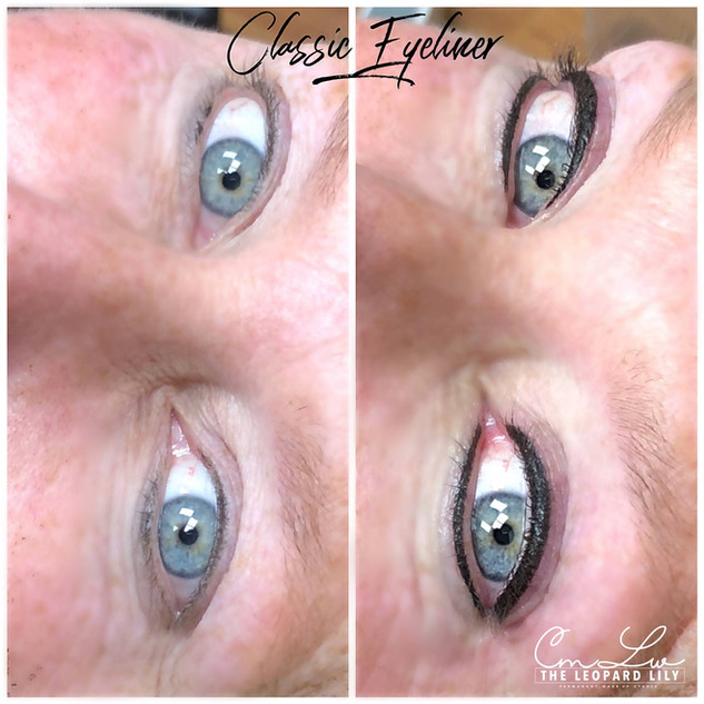Permanent Eyeliner Procedure 10.jpg