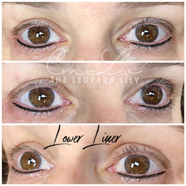 Permanent Eyeliner Procedure 11.jpg