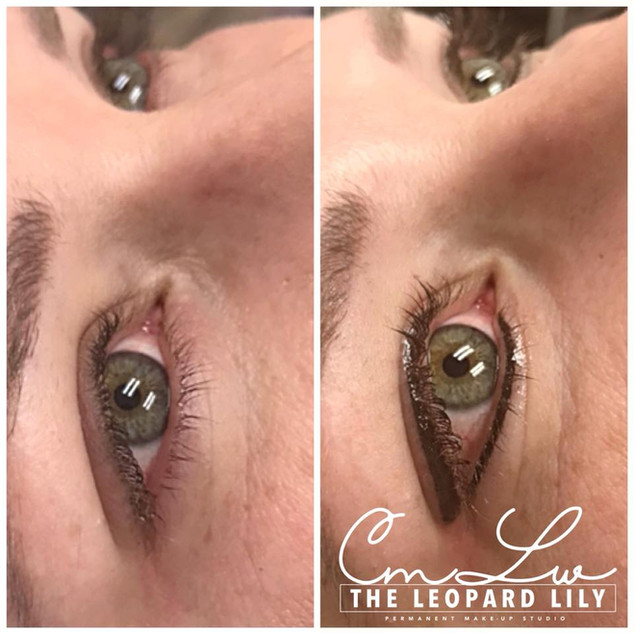 Permanent Eyeliner Procedure 7.jpg