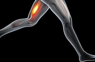 Proximale bicepspeesruptuur van de hamstring