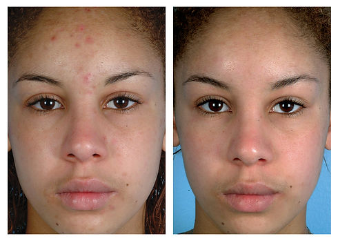 Diamond microdermabrasion before after.j