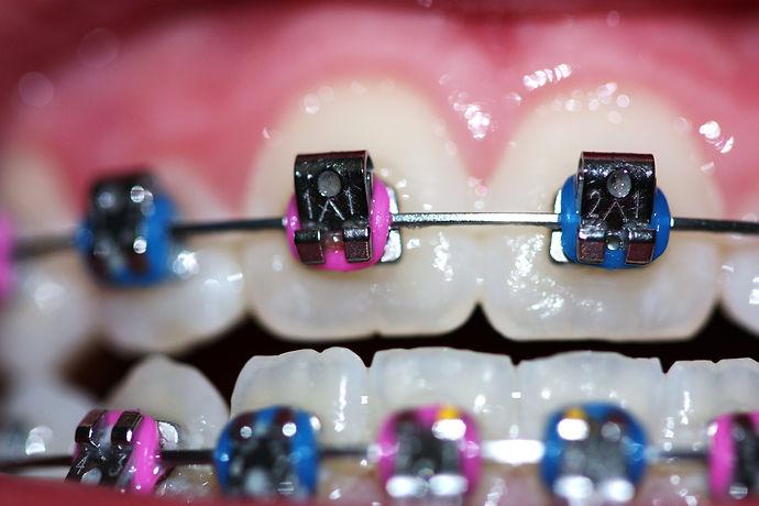 flickr-flickrcolors-blue-pink-braces-bra