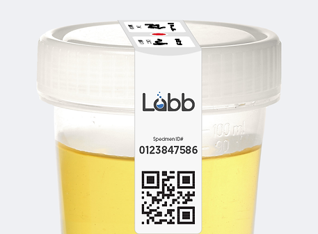cup-sealed-urine.png