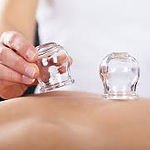 cupping-chinese-health-center-lu.jpg