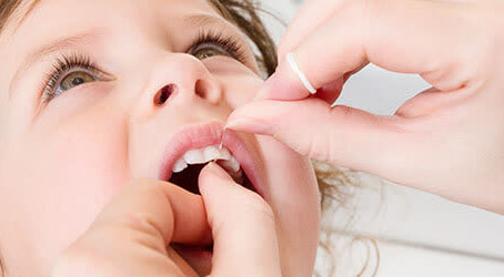 When to Start Flossing Children's Teeth?