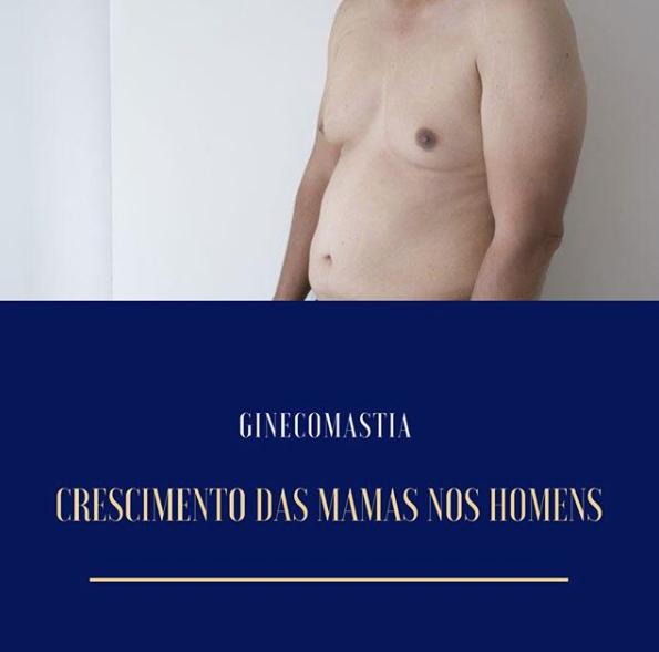 Ginecomastia, homem, mama, lipomastia, cirurgia