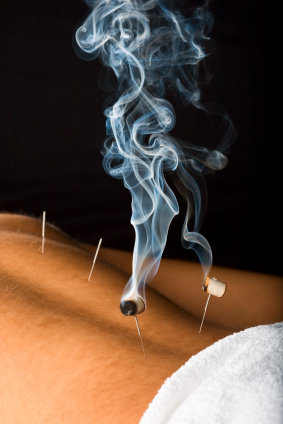 initial acupuncture session gift certificate