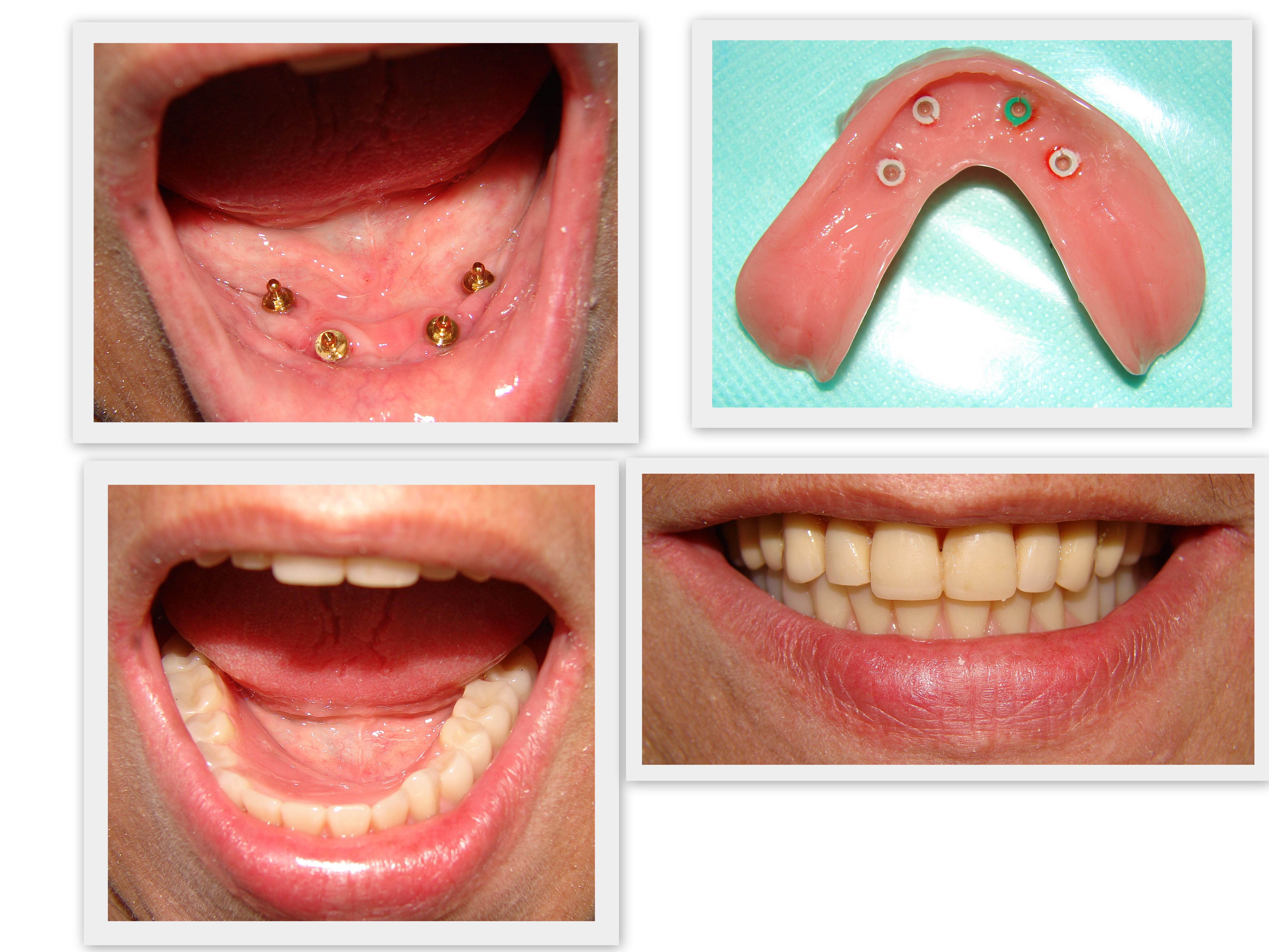 Overdenture sobre implantes