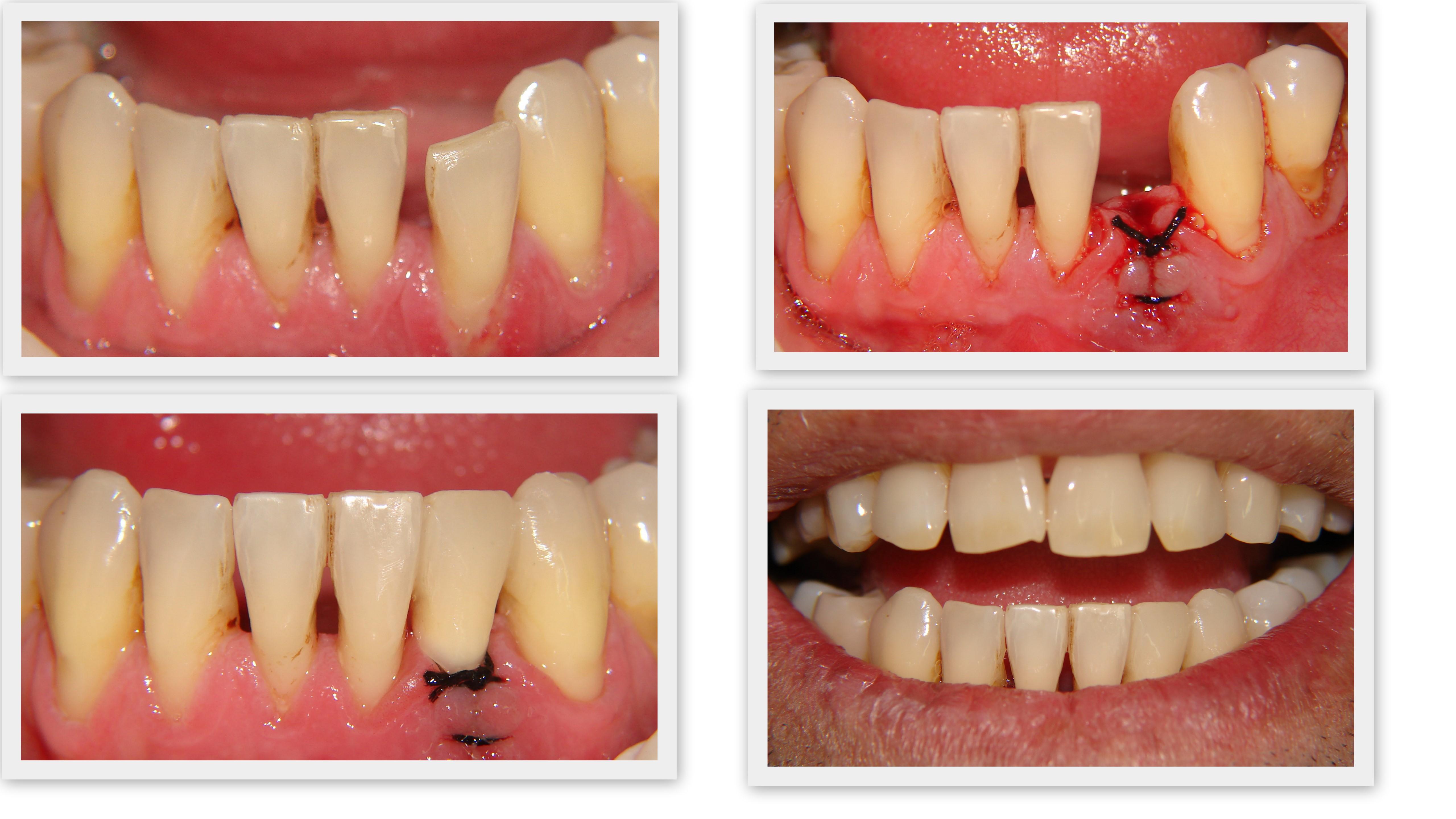 colagem de dente