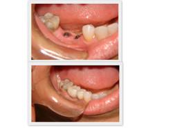 Implantes inferiores