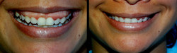 Sorriso Gengival  - tox. botulínica