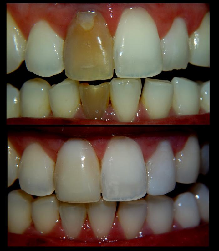 Clareamento dente com canal tratado