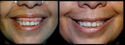 Sorriso Gengival com tox. botulinica