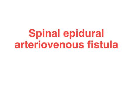 Spinal Epidural Arteriovenous Fistula