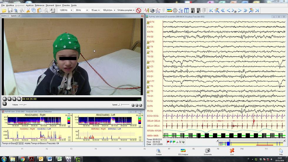 VideoEelectroencefalograma Digital