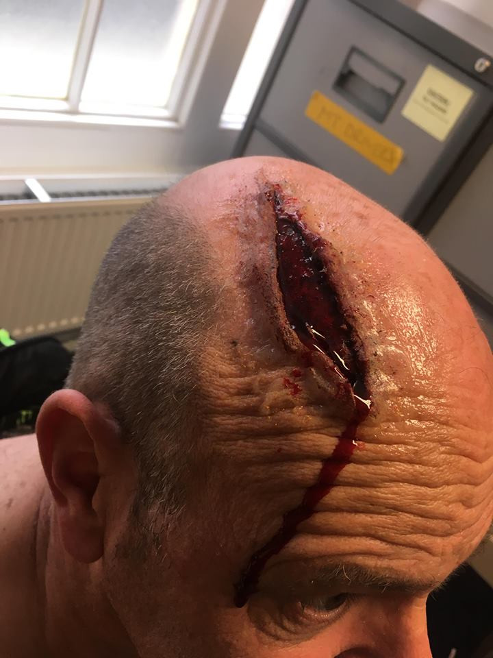 Silicone Head Wound