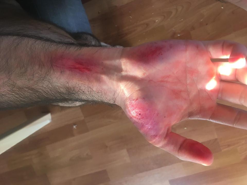 Road Rash Healing