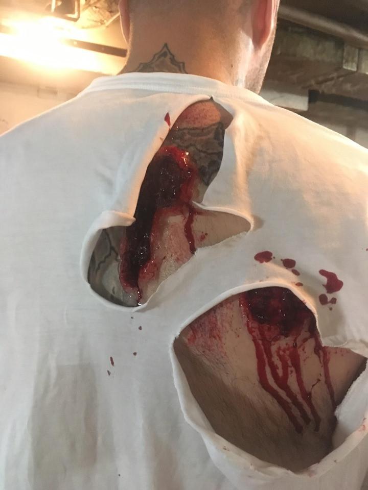 Back Blast Injury