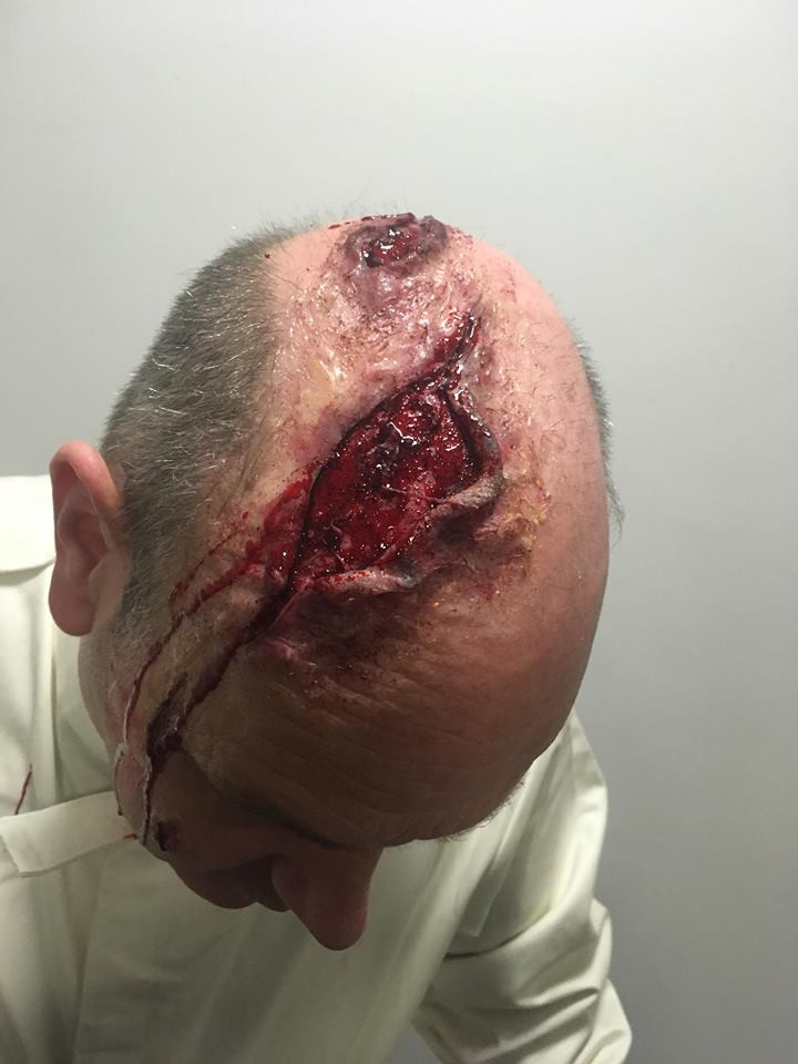 Large Silicone Head Wound