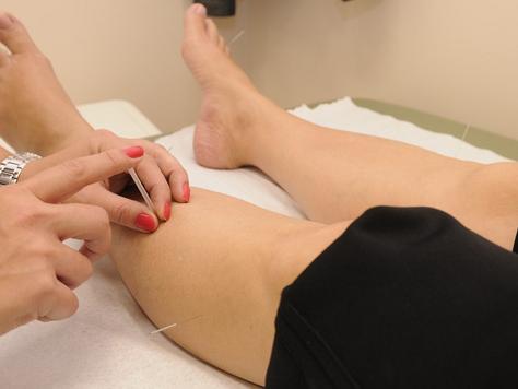 Plano de saúde deve ressarcir valor integral de sessões de acupuntura a beneficiária