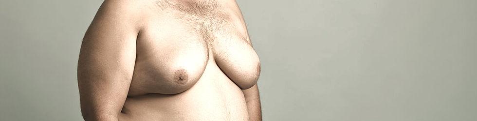 breastreductionmalebanner_edited.jpg