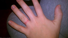 Help! I'm allergic to my ring!