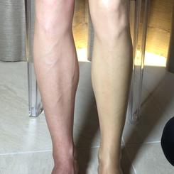 向かって右側が施術をした脚
