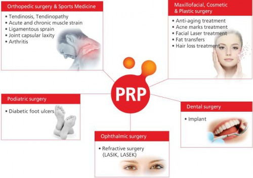 Platelet Rich Plasma (PRP), Natural healing therapy