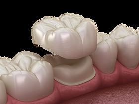 Zubná korunka