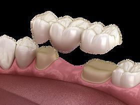 Zubný mostík