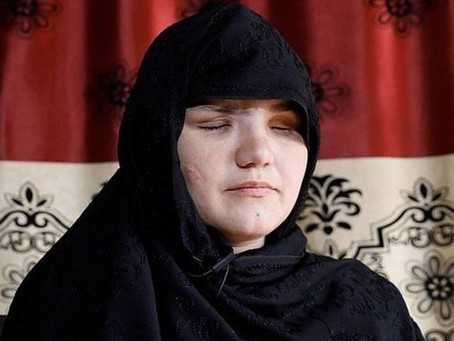 Pai denuncia ao Talibã, e filha tem os olhos arrancados por conseguir emprego