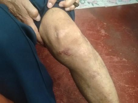 Homem é preso por agredir a própria mãe de 78 anos na zona rural de Marcelino Vieira/RN