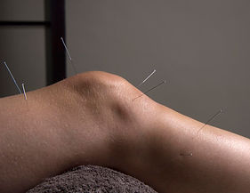 Acupuncture alleviates joints and arthritis