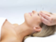 Acupuncture for stress relief, headaches and sleep problems