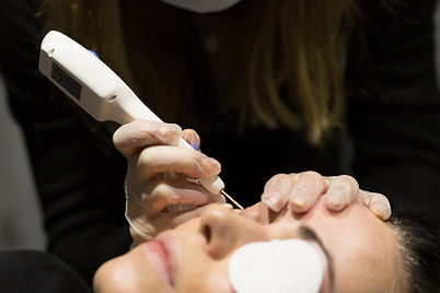 The Skin Girl - Botox, Fillers, Lip fillers, fat freezing in Cardiff, Chepstow, Swansea, Gloucester, Bath