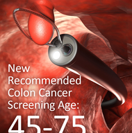 New Recommended Colon Cancer Screening Age For Adults: 45-75