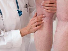 Mesmo com pandemia, doenças vasculares precisam de acompanhamento